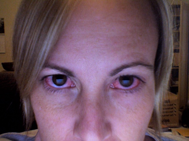 This is what pink eye looks like in case you ever thought you might have had